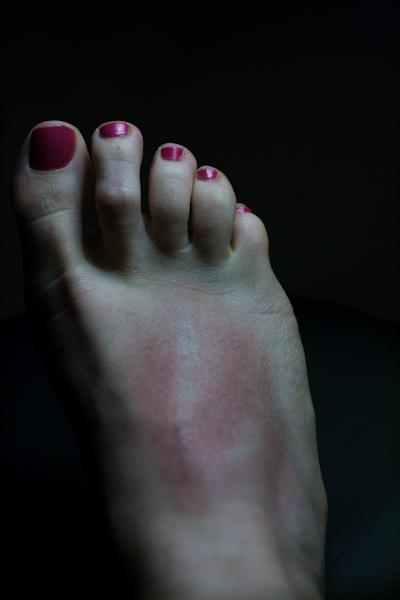 FootBruise